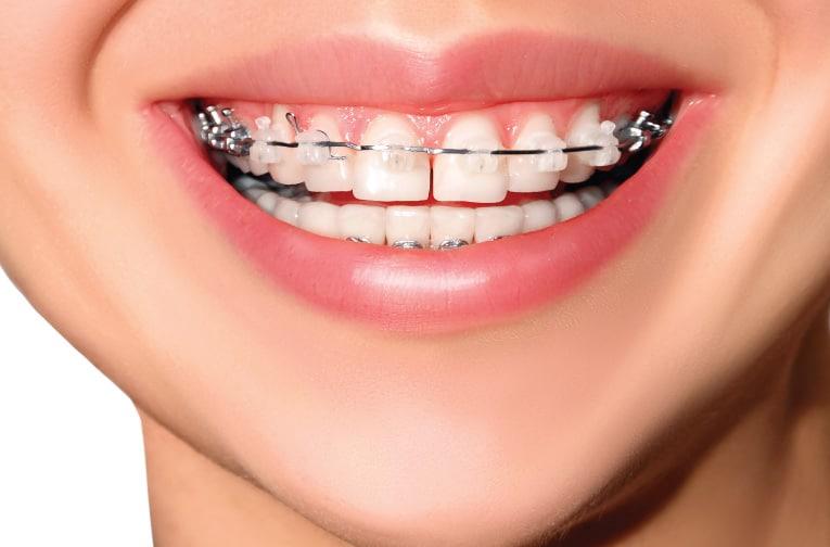 จัด ฟัน ที่ไหน ดี
