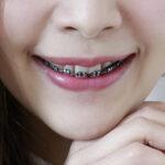 ตอบให้ชัด!!! ทำไมเราต้องเปลี่ยนยางจัดฟันทุกเดือน!! พร้อมเเนะนำ #5คลินิกจัดฟันสุดปัง ปลอดภัยเเละมีมาตรฐานเเน่นอน!!