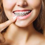 เปิดหมดเปลือก จัดฟันคืออะไร มีทั้งหมดกี่แบบและค่าใช้จ่ายในการจัดฟัน