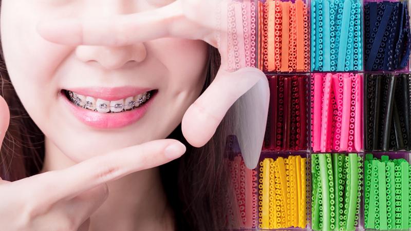 ยาง จัด ฟัน