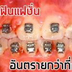 อันตรายจากการจัดฟันเเฟชั่น ที่อาจจะคิดไม่ถึง!! พร้อมเเนะนำ#5คลินิกจัดฟันที่ได้รับมาตรฐานเเละผลลัพธ์ดีเเน่นอน!!