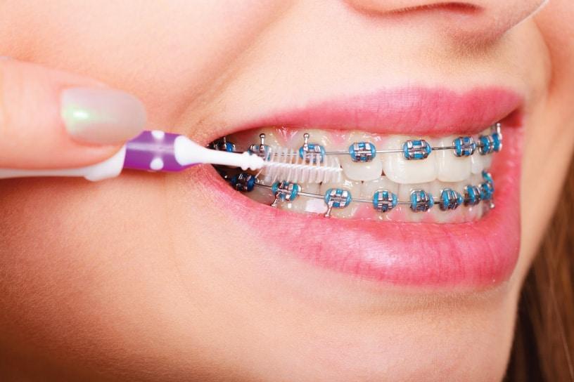 จัด ฟัน pantip