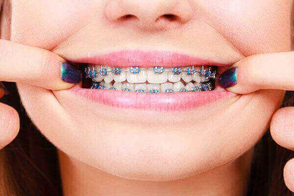 จัดฟันมหิดล