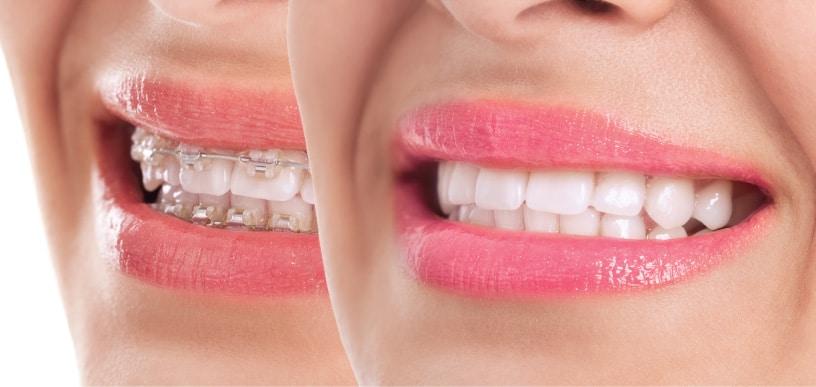 จัดฟัน ลำพูน