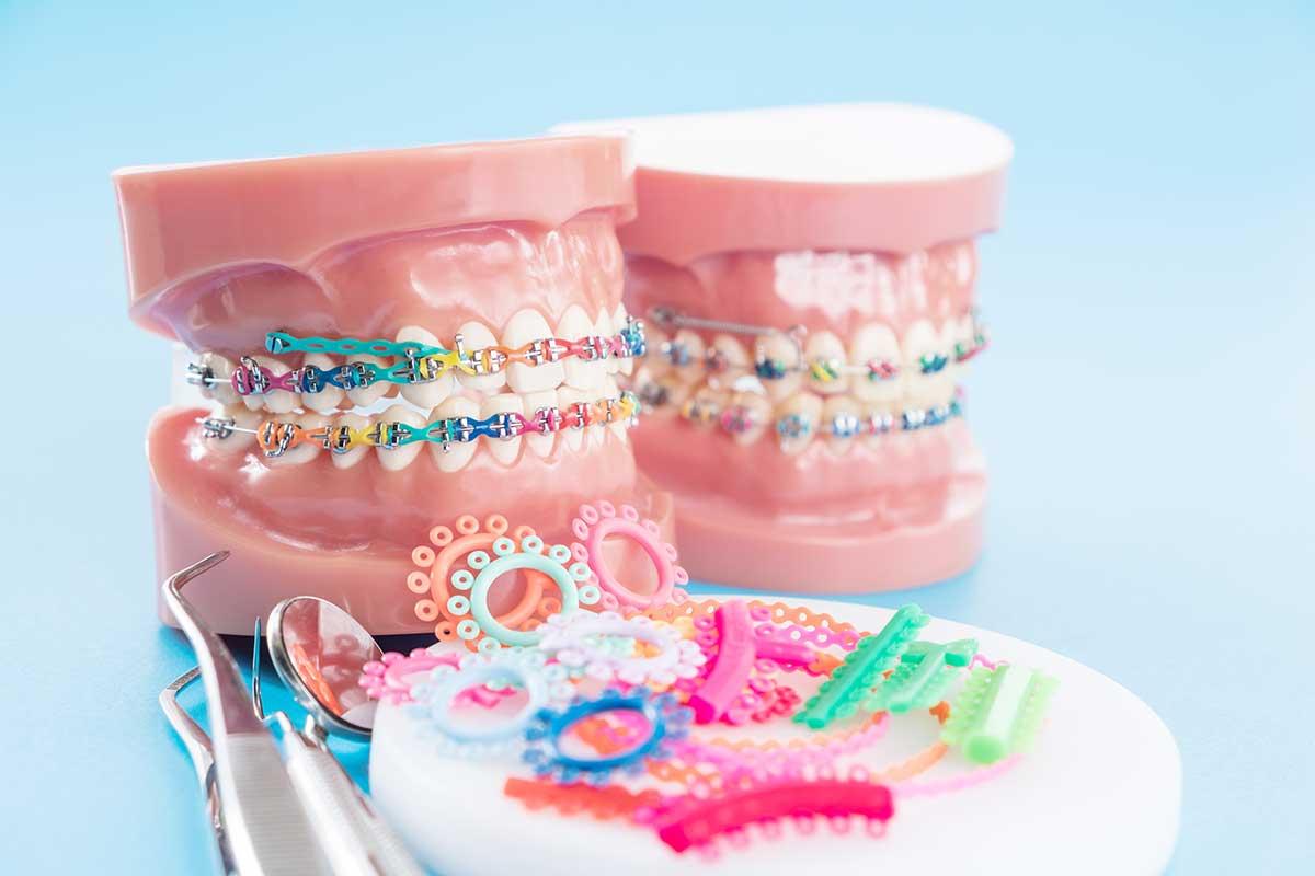 ยางสีจัดฟัน