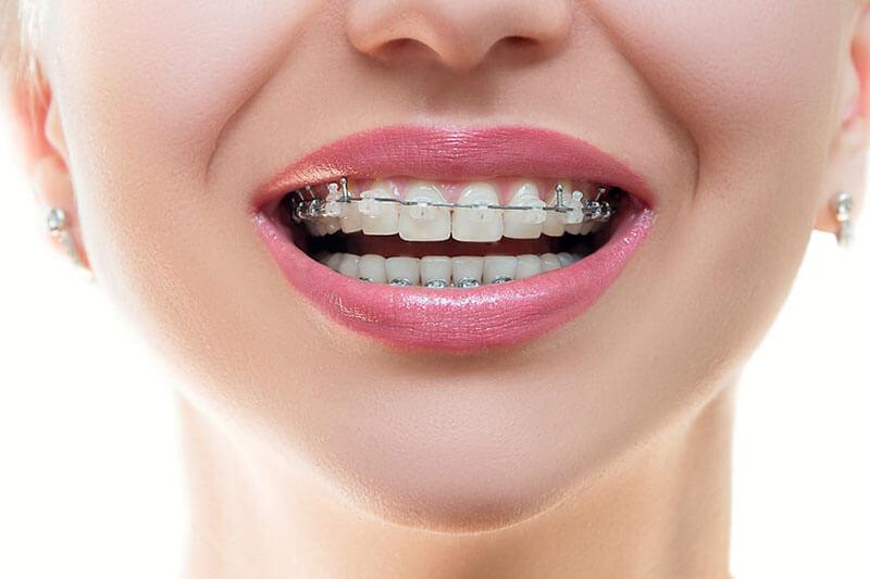 ชาวลำปางมาฟังทางนี้!!  คลินิกจัดฟันแบบไหนดี ในราคาที่ย่อมเยา พร้อม#5 คลินิกที่มีคนรีวิวเพียบ !! มาดูกันเลย