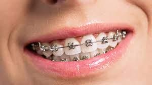 ศัลยกรรมฟัน