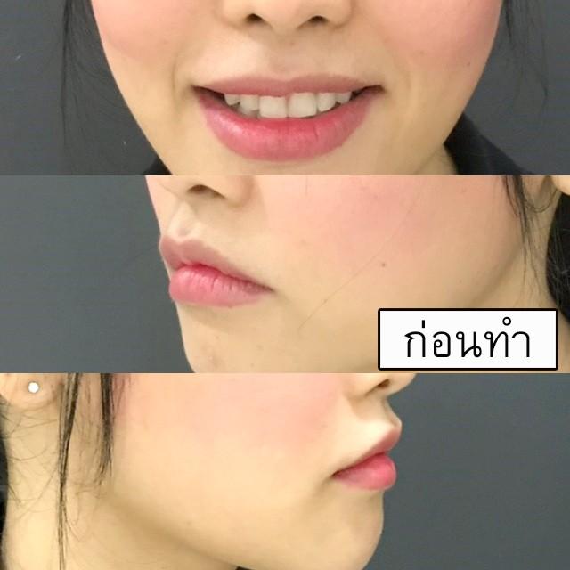 ศัลยกรรมยกมุมปาก