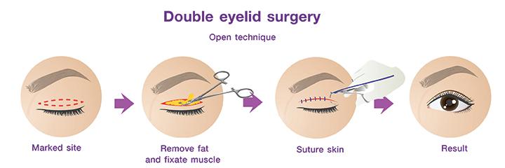 ศัลยกรรมตาชั้นเดียว