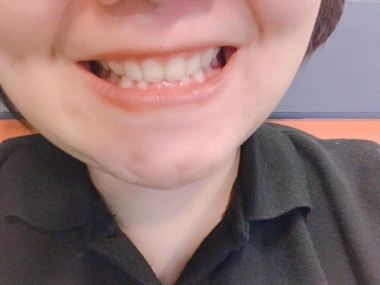 จัด ฟัน ฟัน งุ้ม
