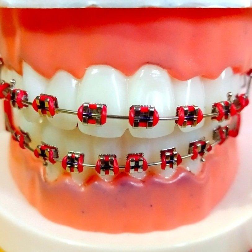 เช็กด่วนน!! สียางจัดฟันแบบไหนที่เหมาะกับเรา เเล้วถ้ายางจัดฟันสีส้มจะ ปัง หรือ พัง มาดูกัน! พร้อมเปิดวาร์ป#คลินิกจัดฟัน ที่มีสียางให้เลือกเยอะมากก!!