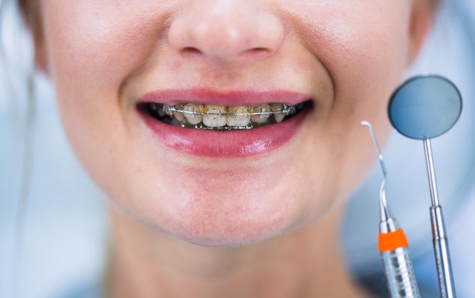 ตอบข้อสงสัย!!จัดฟันสามารถขูดหินปูนได้ไหม??เเละเปิดวาร์ป #5คลินิกจัดฟันย่านนนทบุรีที่เดินทางง่าย!!!