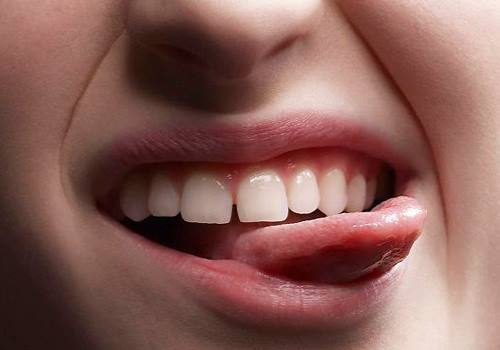 ปัญหาฟันห่าง สามารถเเก้โดยการจัดฟันได้!!ด้วย#5คลินิกจัดฟันที่คุณหมอมีเชี่ยวชาญเเละจบมาโดยตรงทางด้านการจัดฟัน!!!