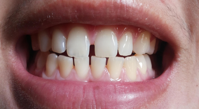 จัดฟันดีไหม