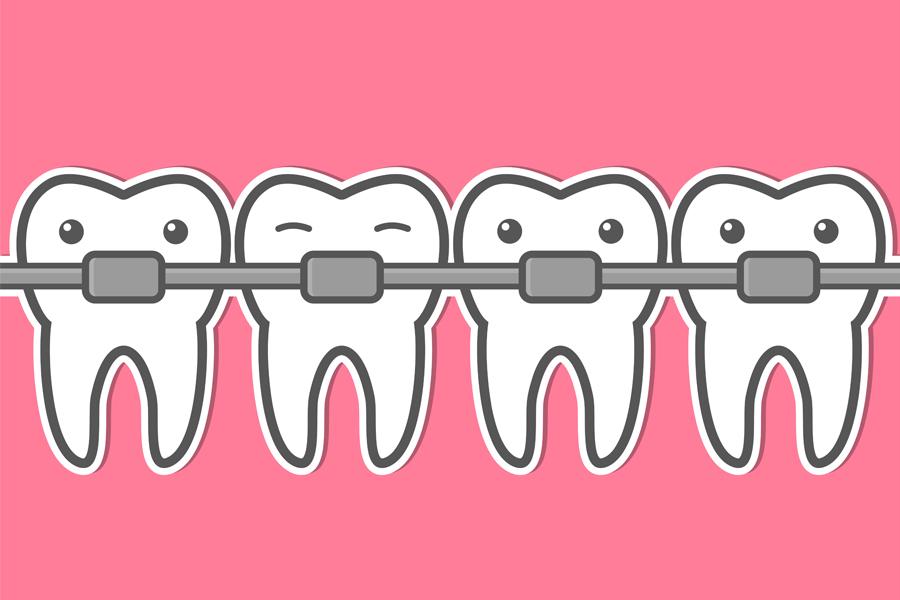 จัด ฟัน ฟัน โยก