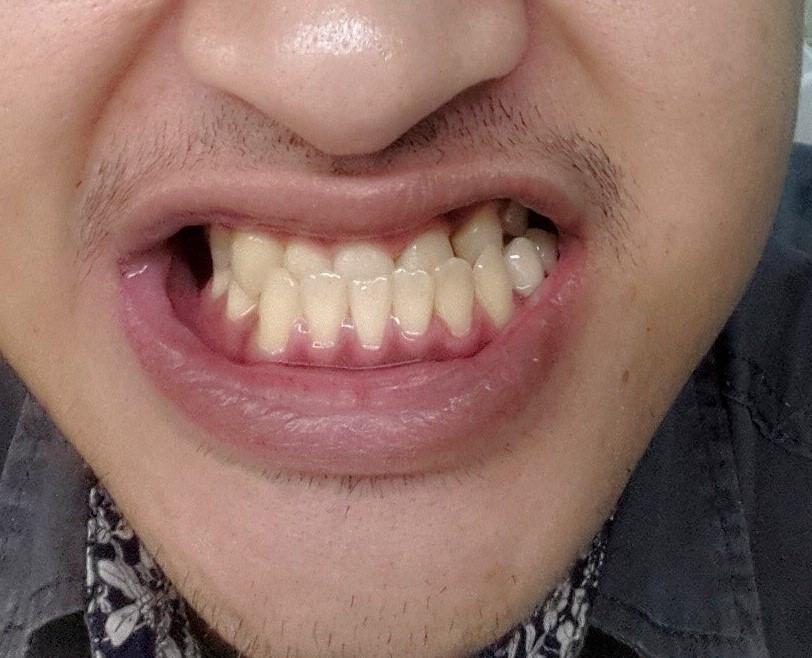 ปัญหาฟันล่างคร่อมฟันบนสามารถเเก้โดยการจัดฟันได้หรือไม่!! ขอเเนะนำ#5คลินิกที่คุณหมอเชี่ยวชาญทางด้านจัดฟันเเละรับเเก้ปัญหาทุกเคส!!!