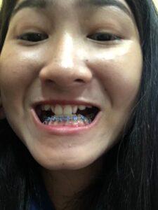 จัด ฟัน ระยอง