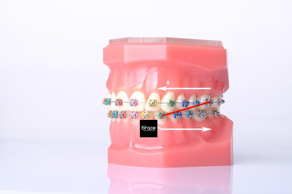 จัด ฟัน ดึง ฟัน