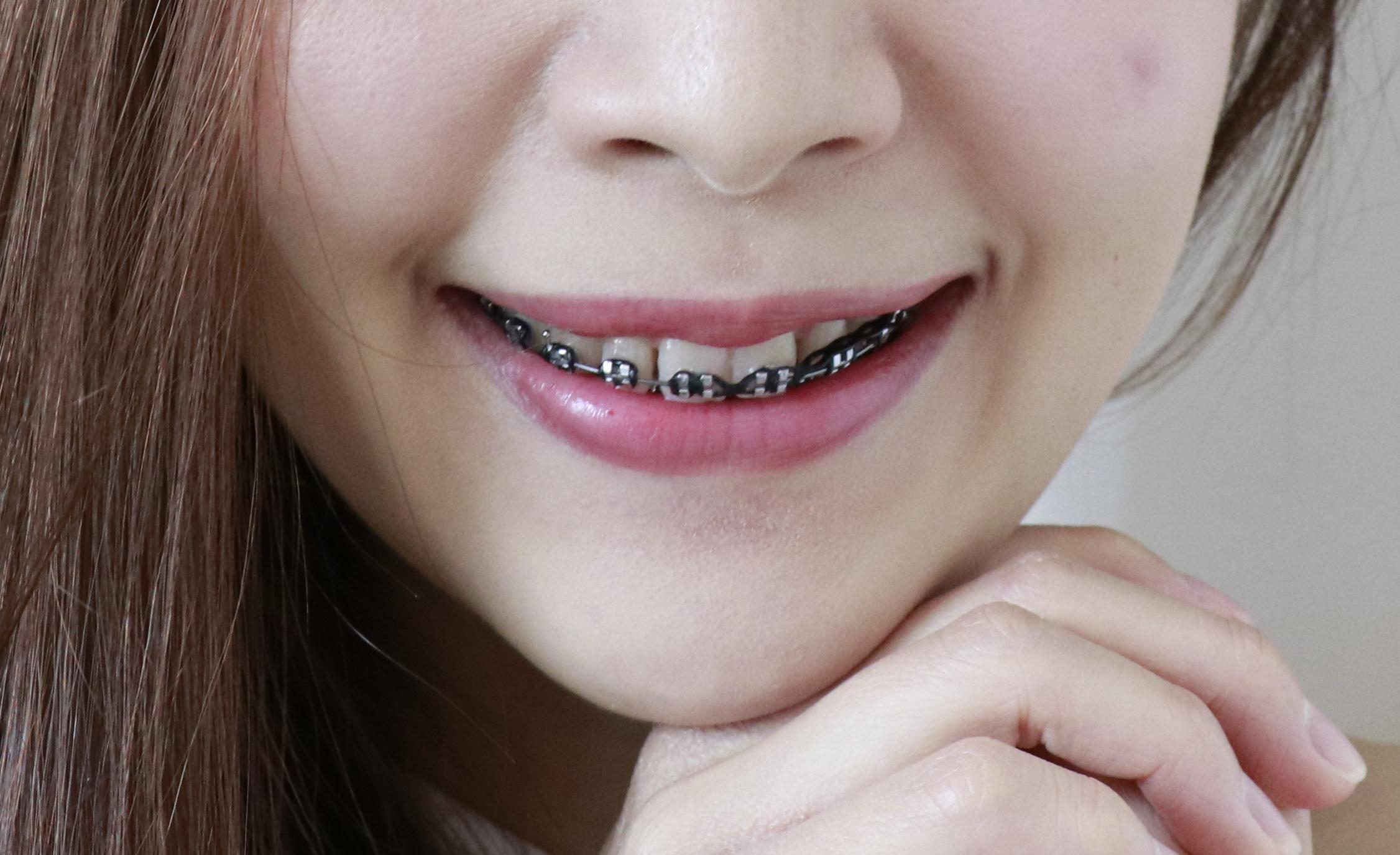 มาหาคำตอบกัน จัดฟันสีดำ รอด !! หรือ ร่วง !! l พร้อม #5 คลินิกในกรุงเทพฯ ที่โดดเด่น ในแบบของตัวเอง