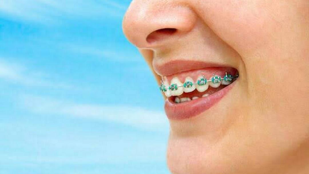 จัดฟัน ลำปาง