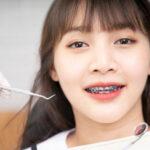 อยากจัดฟัน ต้องเตรียมตัวอย่างไร!!! พร้อมพาส่อง #5 คลินิกดีบอกต่อ ย่านนนทบุรี ที่ใครอยากจัดฟันต้องรู้!!