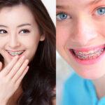 หลายคนสงสัยว่าทำไมการจัดฟันถึงเป็นที่นิยมมากนัก?? แล้วต้องเตรียมตัวยังไง?? ต้องดูแลยังไงนะ??  มาหาคำตอบกันค่ะ!!!!