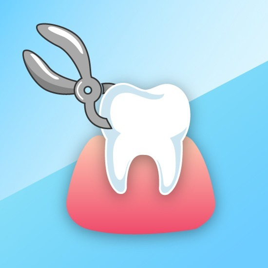 ไหนเล่าสิ!! เมื่อจัดฟันต้องถอนฟันถึง 4 ซี่ หน้าเราจะเปลี่ยนหรือไม่?! พร้อมบอกพิกัด#5คลินิกจัดฟันที่ถอนฟันมือเบาที่สุด!!