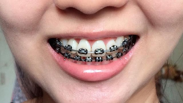 จัด ฟัน สี ดำ