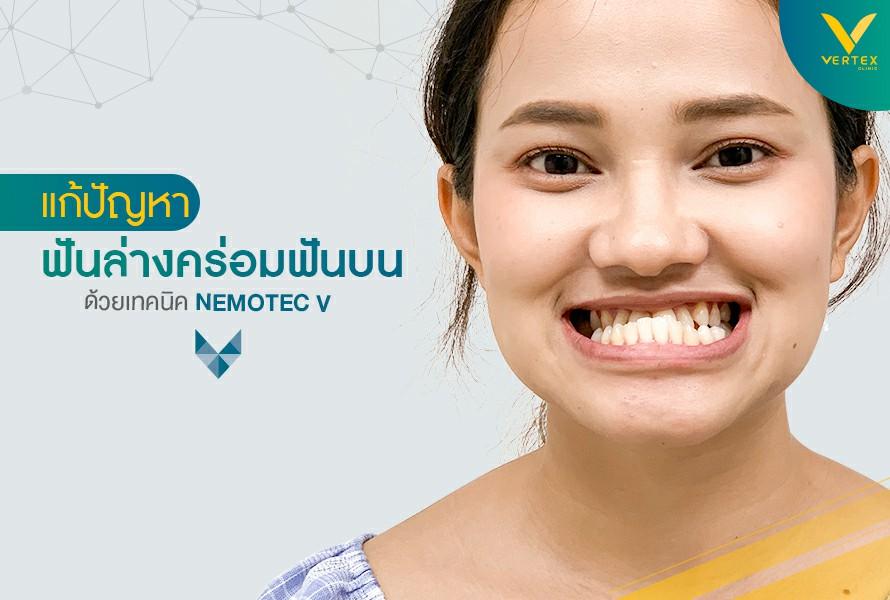 จัด ฟัน ฟัน ล่าง คร่อม ฟัน บน