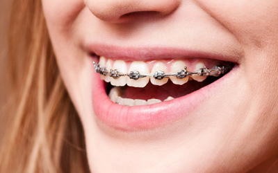 ของดีต้องบอกต่อออ!!! ปักหมุด #5คลินิกจัดฟันแถวมหิดล ที่ไหนดี! ที่ไหนปัง! รีวิวเพียบ!! ใครอยากจัดฟันมาทางนี้เลย!