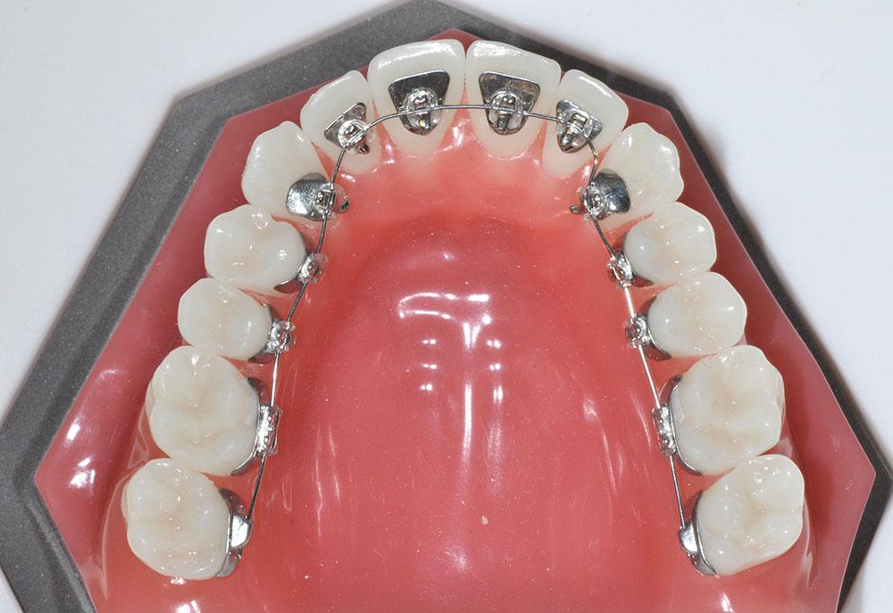 จัดฟันด้านใน