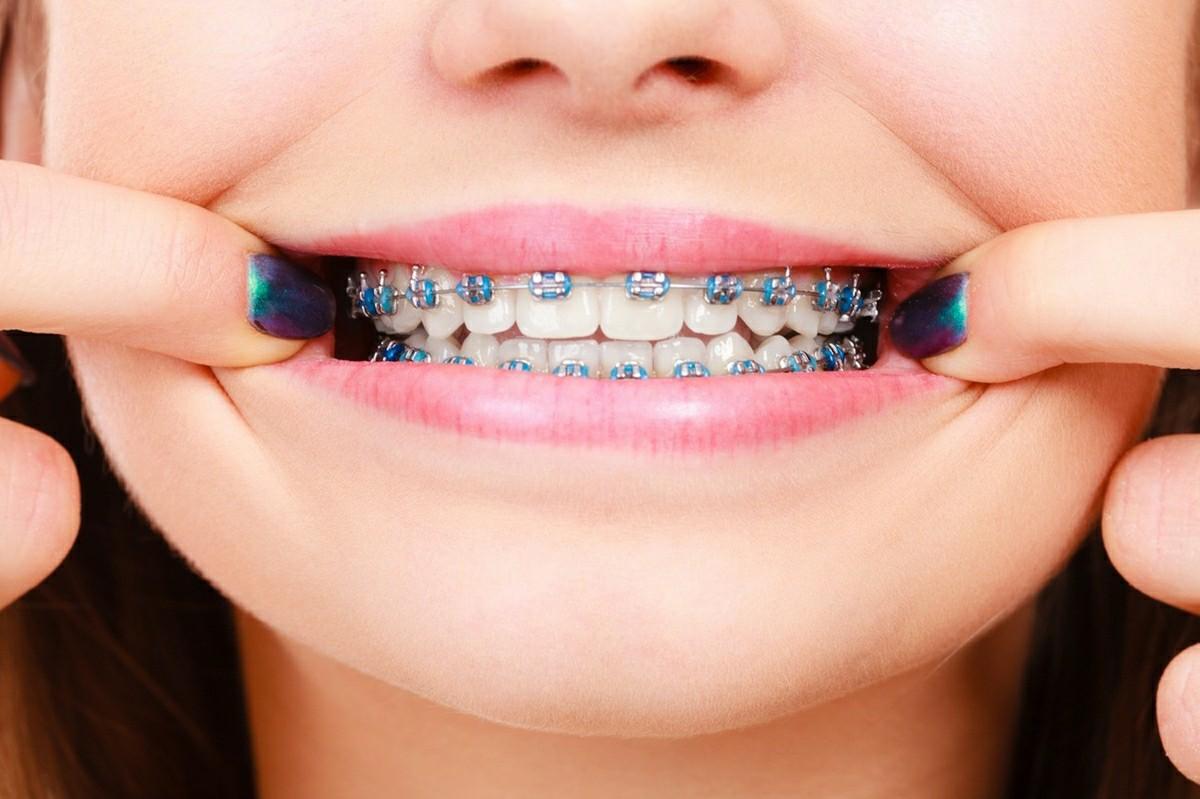 จัด ฟัน บางใหญ่