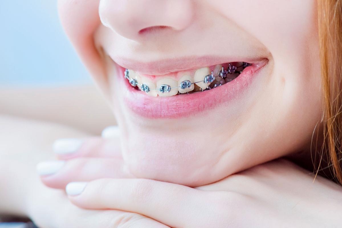 รีวิวละเอียดสุด!! จากชาว Pantip เปรียบเทียบการจัดฟันก่อนเเละหลัง พร้อมเเนะนำ#5คลินิกจัดฟันราคาไม่เเพง เเถม เดินทางง่าย โปรโมชั่นเพียบ!!