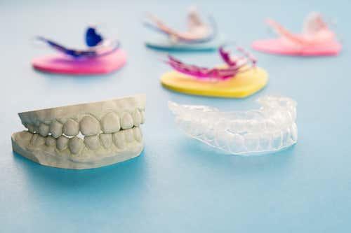 คำถามยอดฮิต!! จัดฟันเสร็จ จำเป็นต้องใส่รีเทนเนอร์หรือไม่!! พร้อมชี้เป้า#5คลินิกจัดฟันย่านกรุงเทพ ที่ราคาไม่เเพง ใกล้ BTS อีกด้วย!