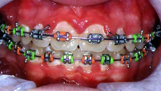 ดัดฟัน pantip