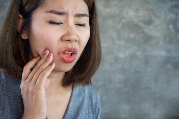 เครียดมากเป็นปากนกกระจอกรักษายังไงดี?? พร้อมแนะนำยาทาปากนกกระจอกให้หายไวขึ้น