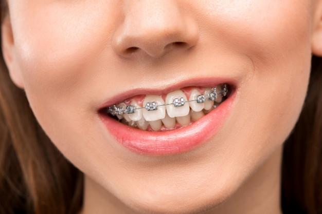 ดัด ฟัน มี กี่ แบบ