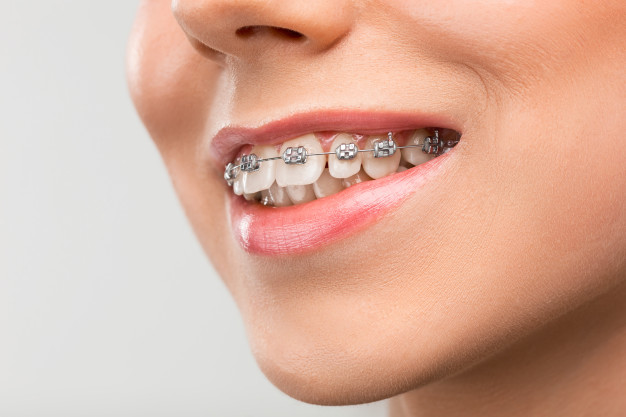 ดัด ฟัน แบบ ดา มอน