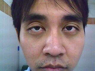ศัลยากรรมตาโรงพยาบาลรามาราคา