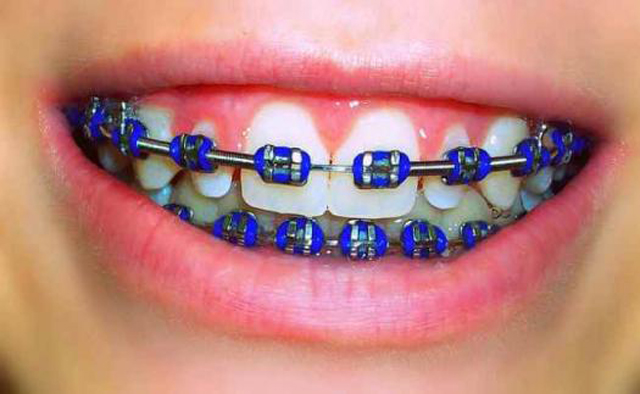 ดัด ฟัน สี ม่วง