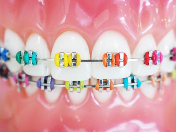 จัด ฟัน สี