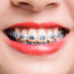 ตอบทุกข้อสงสัยเกี่ยวกับการจัดฟัน!! พร้อมทั้งเเนะนำ#5คลีนิกจัดฟันในจังหวัดสุราษฎร์ธานี ที่เพื่อนๆชาวสุราษฎร์ต้องรู้!! ถ้าอยากจัดฟัน!