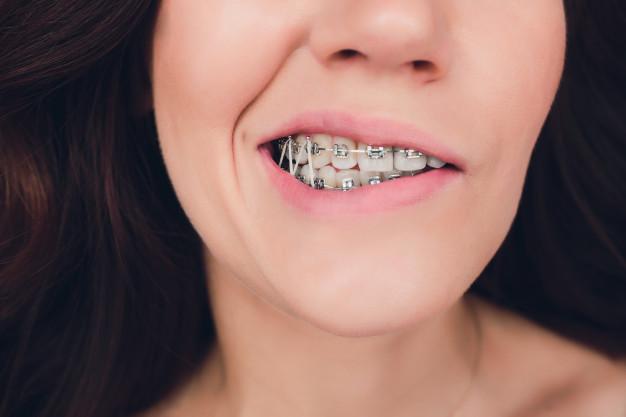 จัด ฟัน ถอน ฟัน หน้า