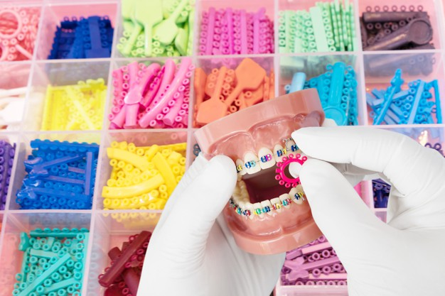 โอริง จัดฟัน สี ไหน สวย