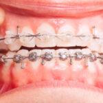 จัดฟันดามอนคืออะไร??!! ทำไมคนส่วนใหญ่นิยม พร้อมเปิดวาร์ป #5คลินิกจัดฟัน ราคาไม่เเรง!!