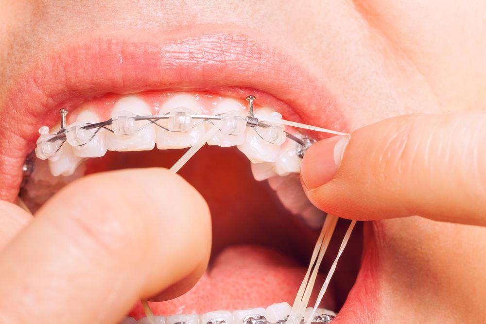 ตอบให้เคลียร์!!! จัดฟันทำไมต้องปวดฟันด้วย??!! เเก้ไขยังไง!! มาพร้อม#5คลินิกจัดฟันย่านนนทบุรี ที่มือเบาสุดเเถมไม่ค่อยปวดฟันด้วย!