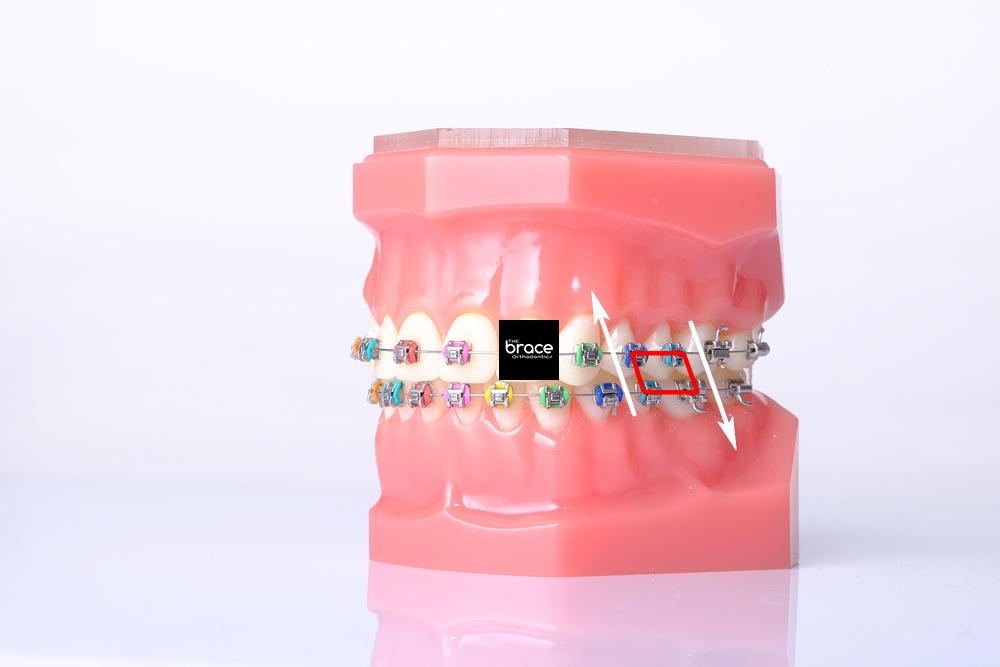 จัดฟันพิษณุโลก