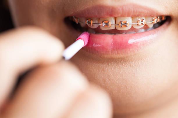 ดัดฟันราคา