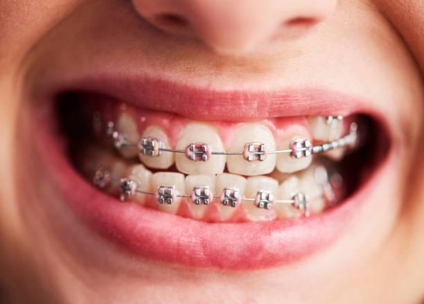 ดัดฟันดีไหม