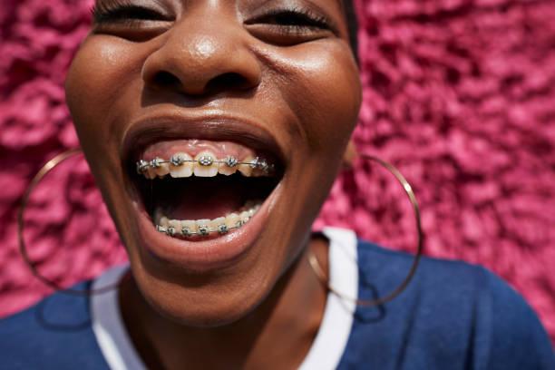จัดฟันราคา